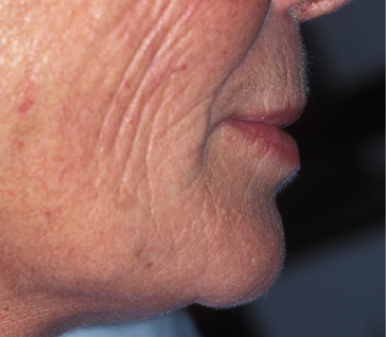 face profile after bone reconstruction